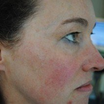IPL Facial Laser Treatment