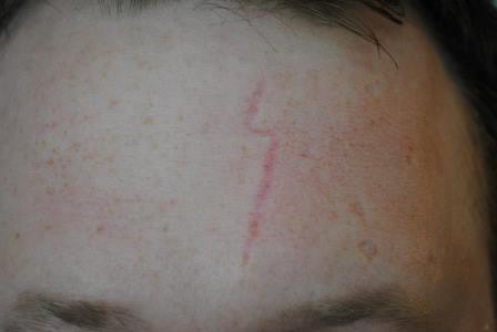 before scar treatment