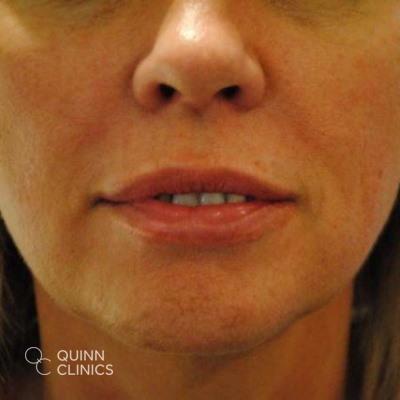 after-dermal-fillers-lips