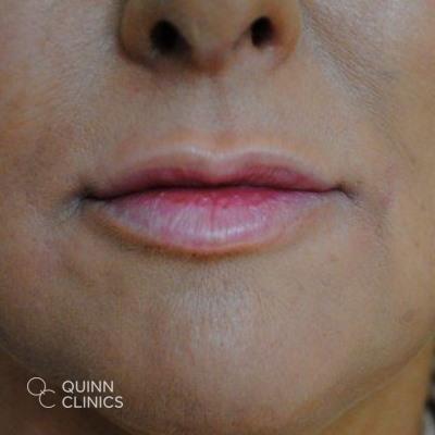 after-lip-enhancement