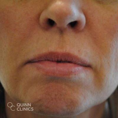 before-dermal-fillers-lips