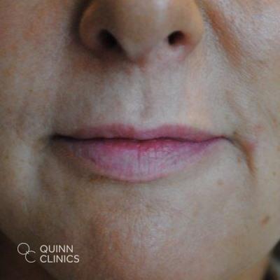 before-lip-enhancement