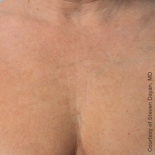 After Ultherapy Decolletage