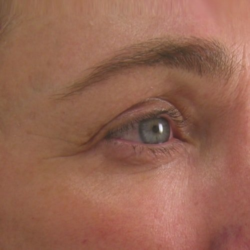 Ultherapy Brow After
