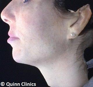 After chin augmentation dermal fillers