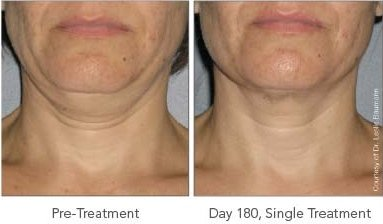 before after ultherapy neck
