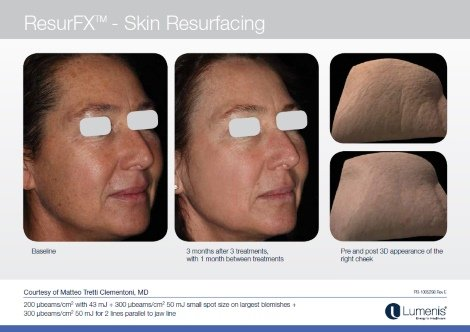 m22 facial resurfacing
