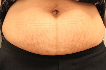 after stretch marks sublative