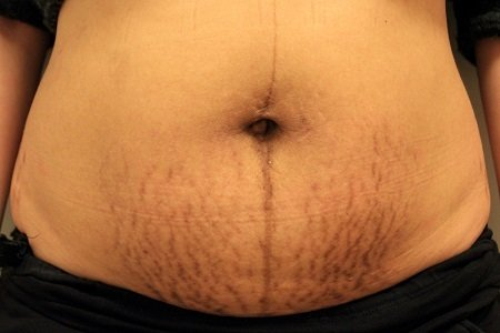 before stretch marks sublative