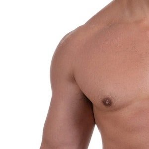 male laser hair removal