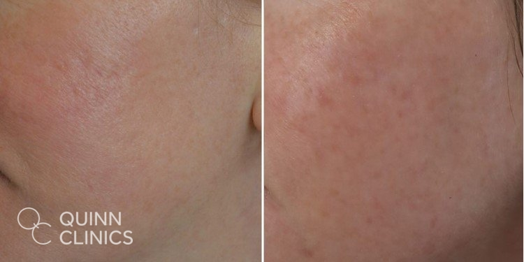 Rosacea IPL Radiofrequency