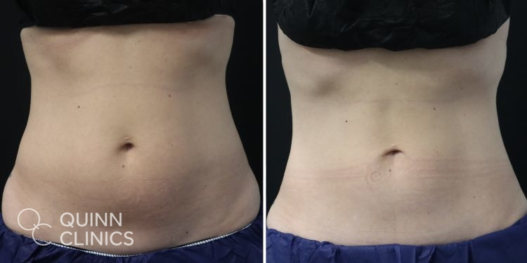 before and after coolsculpting abs