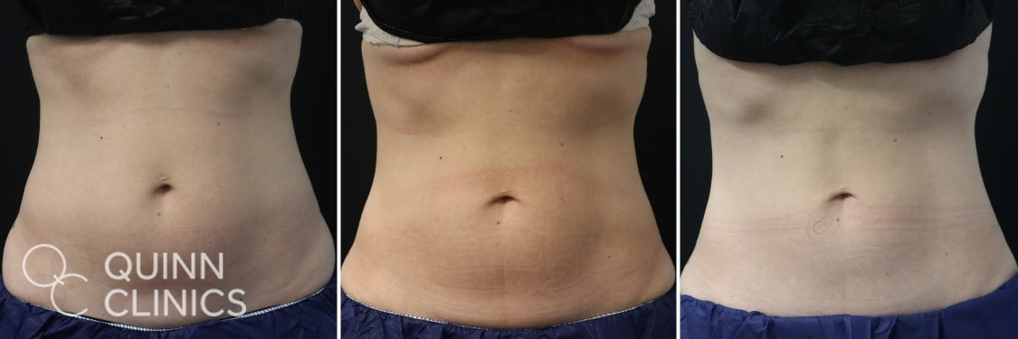 coolsculpting abs transformation