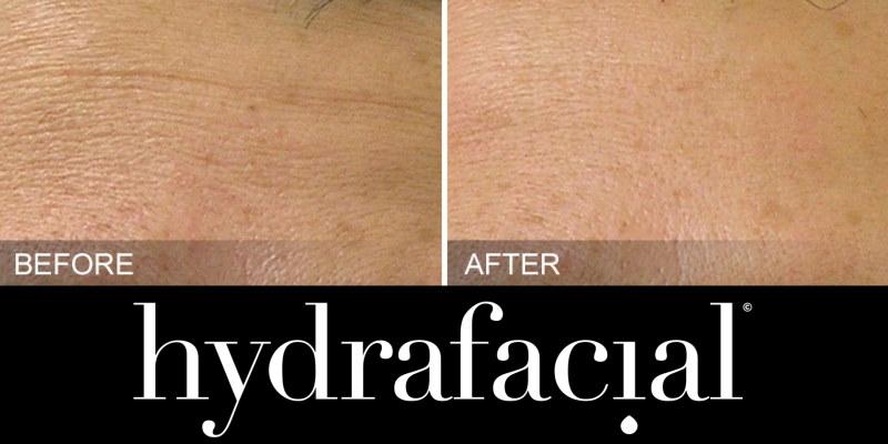 HydraFacial Fine Lines